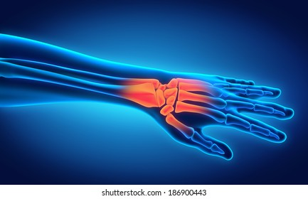 Wrist Bones Images, Stock Photos & Vectors | Shutterstock