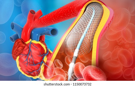 Human heart angioplasty. 3d illustration
