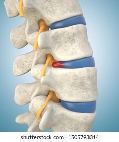 Human lumbar spine model demonstrating herniated disc, pressure nerve root causing back pain. 3D illustration