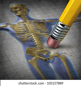 Human osteoporosis symbol of deterioration of bone tissue for a disease with medical symptoms of low skeletal mass and fragility of skeleton with an illustration of a pencil erasing the body.
