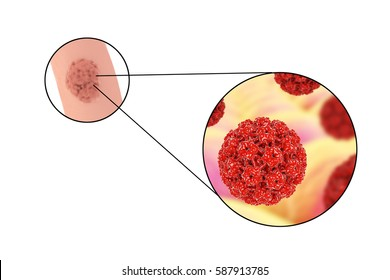 Human papillomavirus HPV lesions in men, genital warts, and close-up view of HPV. 3D illustration