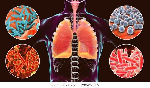 Human respiratory pathogens, 3D illustration. Mycobacterium tuberculosis, Streptococcus pneumoniae, Mycoplasma pneumoniae, Legionella pneumophila