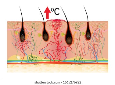 Human skin inflammation infographic color illustration. Swelling cross section with skin layers.