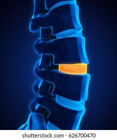 Human Spine Disc Degenerative. 3D rendering
