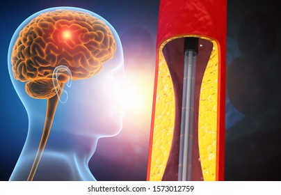 Human stroke disease  cocnept with angioplasty for stroke. 3d illustration