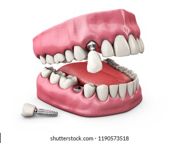 Human teeth and Dental implant. 3d illustration.