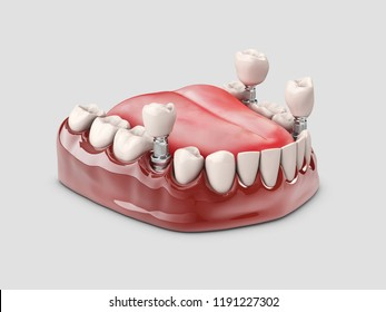 Human teeth and Dental implant. 3d illustration