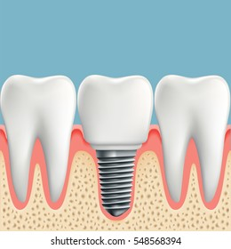 Human teeth and Dental implant. Stock illustration.