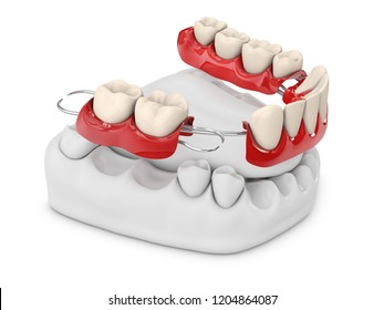 Human teeth with denture. 3d illustration isolated white