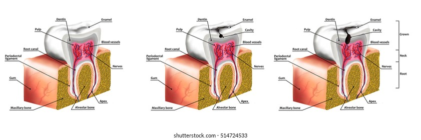 Human Tooth Decay Anatomy Diagram Description Stock Illustration ...