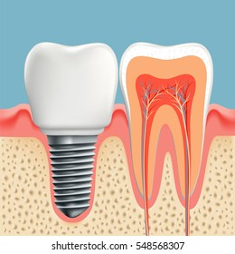 Human tooth in cross-section and dental implant. Stock illustration.