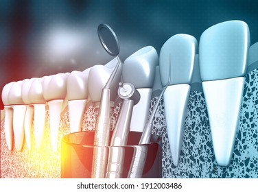 Human tooth with dental tools. 3d illustration