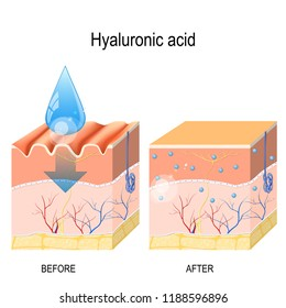 Hyaluronic acid. skin-care products. skin rejuvenation with help of hyaluronic acid