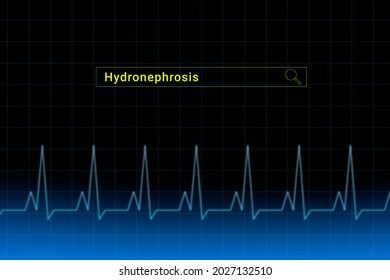 Hydronephrosis.Hydronephrosis inscription in search bar. Illustration with titled Hydronephrosis . Heartbeat line as a symbol of human disease.