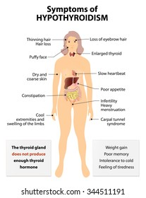 Hypothyroidism or low thyroid and hypothyreosis. common disorder of the endocrine system in which the thyroid gland does not produce enough thyroid hormone. Signs and Symptoms thyroid dysfunction