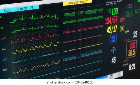 ICU monitor showing patient's condition, high temperature, arrhythmia, illness