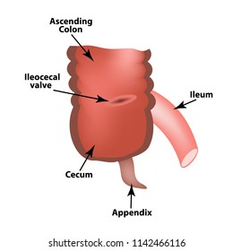 Ileocecal angle. Ileocecal valve. Bauginiev s damper. The ileum, the Cecum, the Apendix. Colon. Infographics. illustration on isolated background