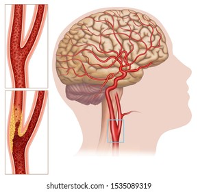 Illustration carotid artery disease, this affects the blood vessels that lead to the head and brain, the carotid becomes clogged and the brain does not receive enough oxygen.