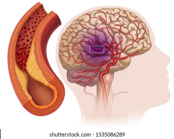 Illustration of clogged cerebral arteries, a disease that affects the blood vessels that lead to the head and brain, the carotid artery becomes clogged and the brain does not receive enough oxygen.