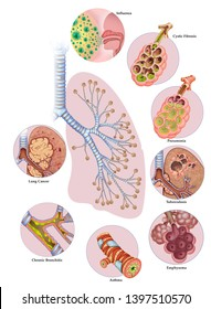 Illustration composed of the left part of the lungs and branch of the bronchi, and in outline, eight circles, each of them has a pulmonary respiratory disease,