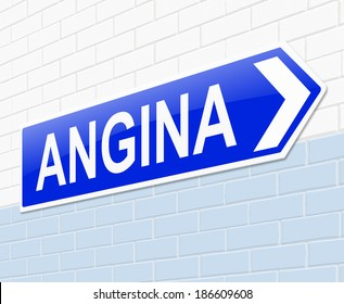 Illustration depicting a sign with an Angina concept.