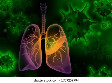 Illustration of diseased human lungs and viruses on dark background. 3D