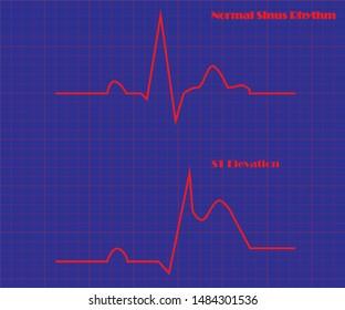 Illustration of ECG.Normal sinus rhythm and ST elevation .
