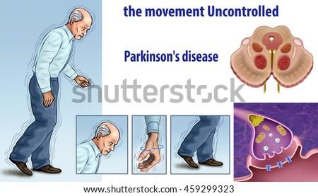 illustration elements involved parkinsons disease uncontrolledの