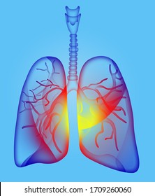 Illustration of human lungs affected with disease on light blue background. 3D
