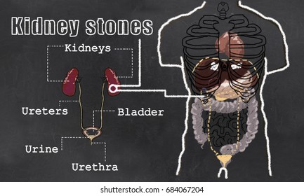 Illustration of Kidney Stones with Classic old drawing Style
