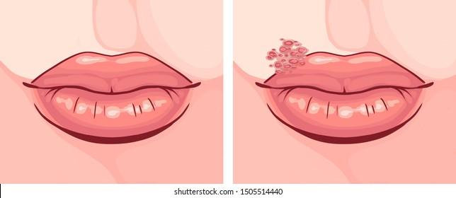 illustration of lips with herpes