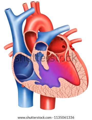 Illustration On Ventricular Septal Defect Ventricular Stock