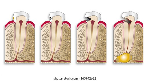 illustration of the progression of a cavity