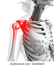 Illustration of shoulder pain artwork