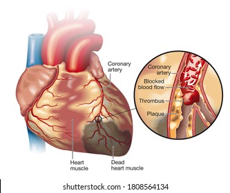 Illustration showing healthy heart (small) and plaque in coronary artery, blood clot (thrombus) breaking off and blocking blood flow (cardiac infarction)