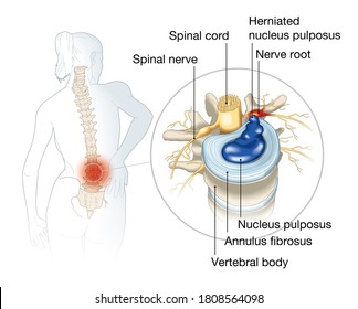 illustration showing lumbal vertebra with intervertebral disc and herniated nucleus pulposus