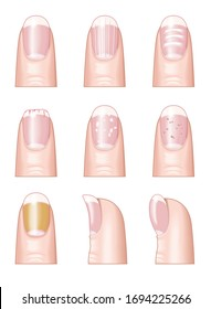 Illustration showing most common nail disorders and diseases: normal fingernail, cracked or brittle nails, white spots, horizontal bridges, yellow fingernails