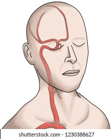Illustration shown the blood vessel feeding the brain. Carotid artery give the middle cerebral and anterior cerebral arteries.  it compose of 80% of whole brain circulation.