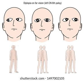 The illustration shown the diplopia results from the sixth cranial nerve palsy.