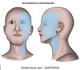 illustration shown the pattern of pain distribution in left carotid dissection. Carotid dissection is the tearing of wall of carotid artery and caused ischemic stroke.