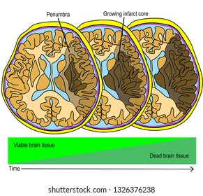 Illustration shown the progressing ischemic process of cerebral infarction. Growing infarct core and penumbra zone. Time is a important key to determine volume of irreversible brain damage.