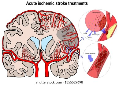 Illustration shown the two major acute ischemic stroke treatment which help patient to be well and come back to be normal or near normal life.