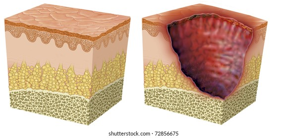 Illustration of skin ulceration