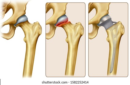 Illustration of three examples of the femoral head of the femur, normal, with fracture in the neck of the femur, and the last shows the correction with treatment of partial hip arthroplasty.
