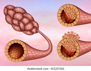 Illustration of woman breast lobe affected by invasive ductal carcinoma or in the filter.