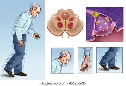 Illustrations elderly person with tremors caused by Parkinson's.