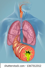 Image of the lungs, a bronchus leaves the bronchial branch to the foreground, showing the walls that compose it and those that are in a normal and healthy state.