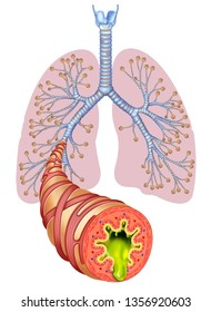 Mucus Lungs Images, Stock Photos & Vectors | Shutterstock