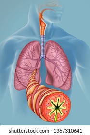 Image of the lungs and a bronchus that leaves the bronchial branch to the foreground showing all the symptoms of an acute asthma, with the airways totally obstructed.