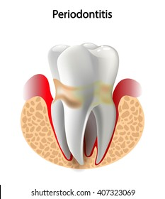 image tooth caries disease. Surface caries.Deep caries  Pulpitis Periodontitis.